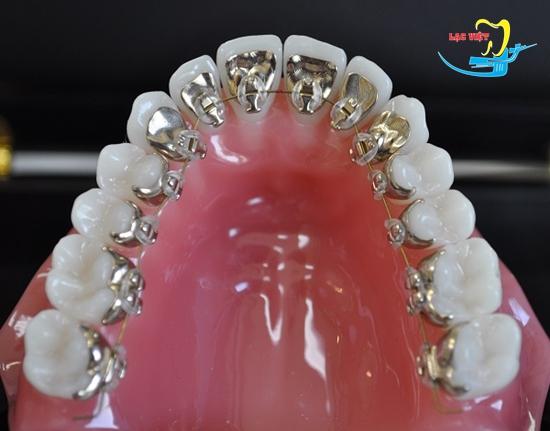 Niềng răng mặt trong là gì và niềng răng mắc cài mặt trong giá bao nhiêu