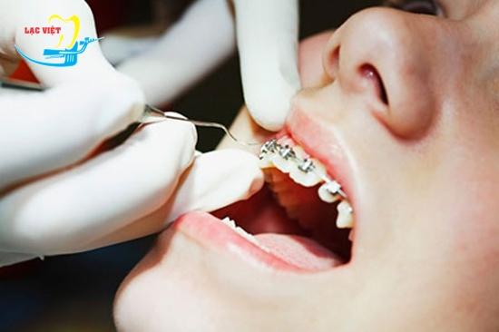 thẩm mỹ răng khấp khểnh bằng phương pháp niềng răng