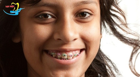 những người có răng khểnh và phương pháp khắc phục