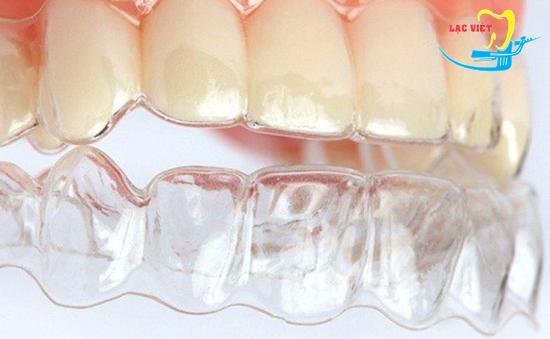 Niềng răng không mắc cài là gì và thời gian điều trị niềng răng không mắc cài