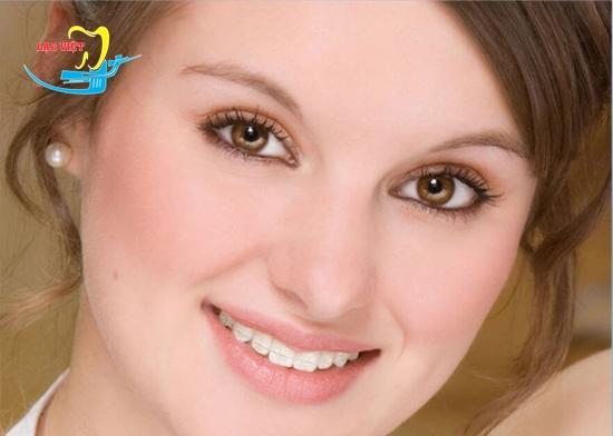 Phương pháp niềng răng mắc cài sứ tự đóng