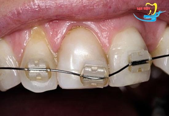 Niềng răng mắc cài có đau và nguy hiểm không