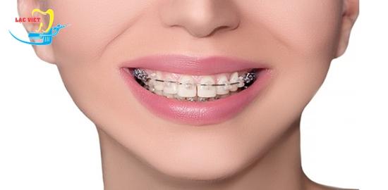 Giải đáp thắc mắc chi phí niềng răng thưa bao nhiêu