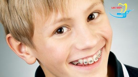 Nha sỹ giải đáp chi phí niềng răng cửa thưa