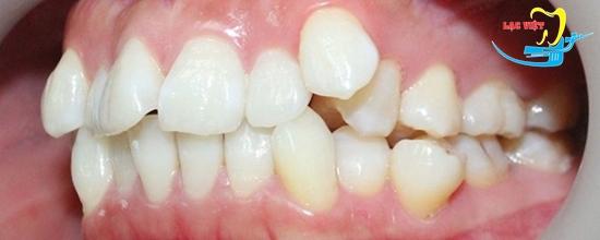 Răng khểnh là gì và cách trồng răng khểnh