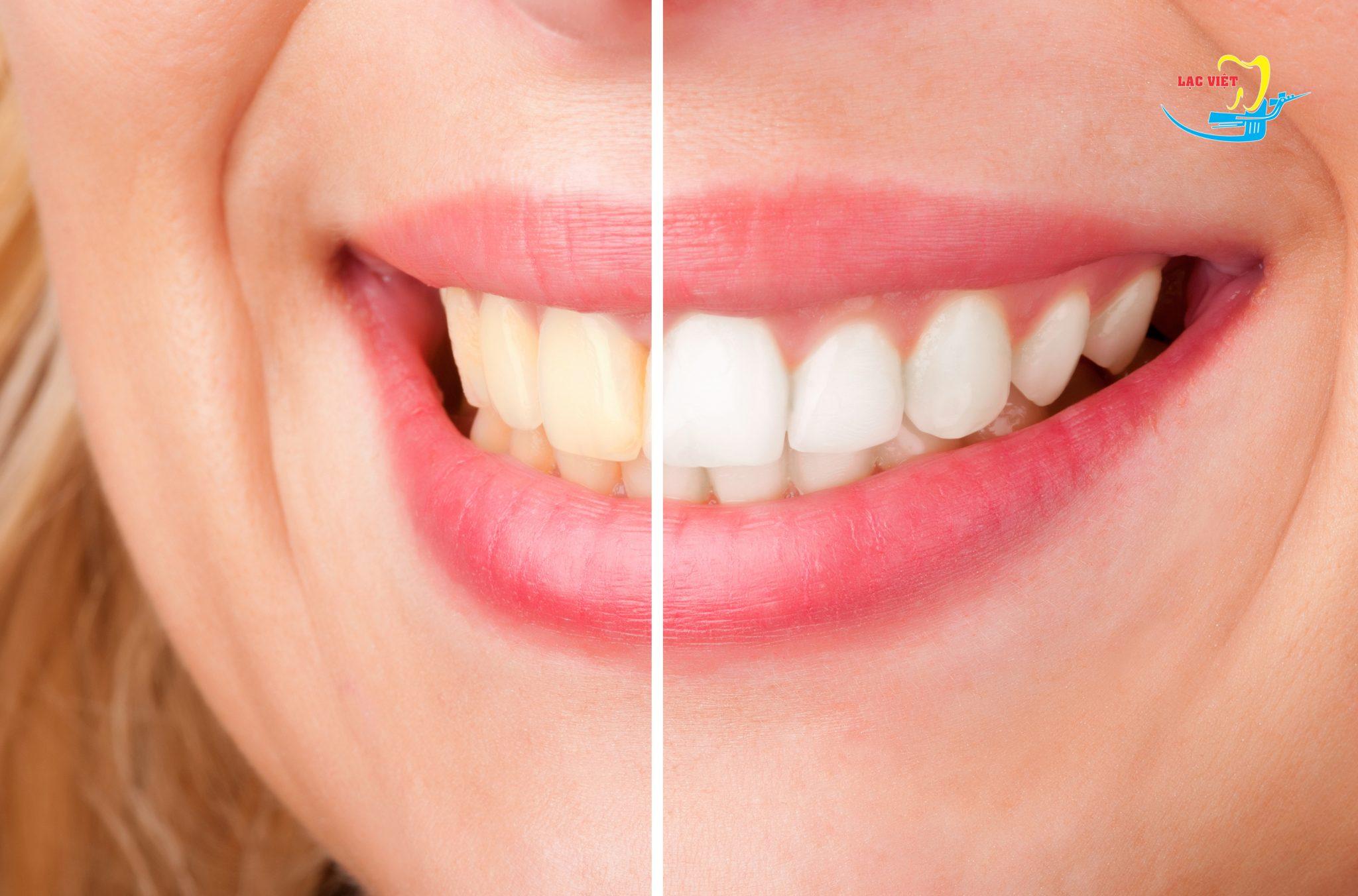 tẩy trắng răng giá thế nào