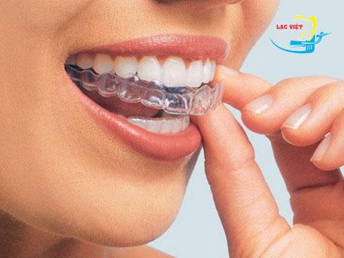tìm hiểu về cách tẩy trắng răng bằng máng