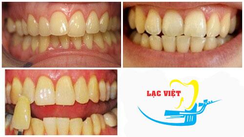 trước và sau khi tẩy trắng răng bằng máng