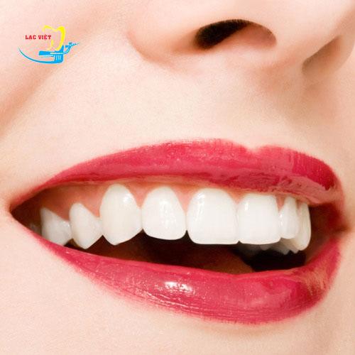 tìm hiểu tẩy trắng răng là gì