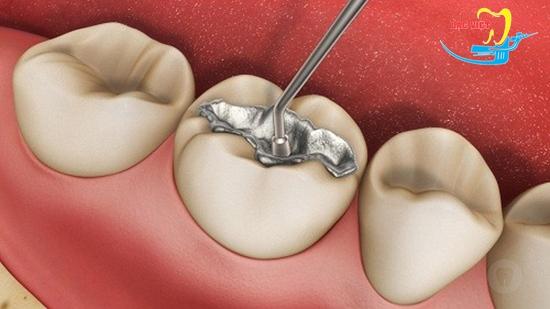 sâu răng hàm trên cùng và phương pháp hàn trám