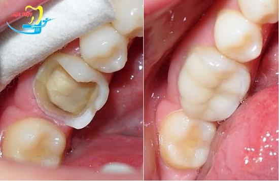 bị sâu răng hàm trên và kết quả hàn trám