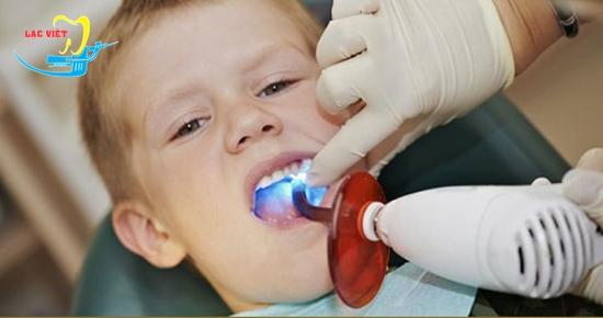 hàn trám răng sâu công nghệ Laser Tech