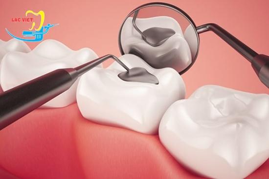 cách trám răng sâu là như thế nào