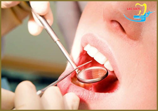 Nha sỹ giải đáp trám răng sâu có đau không
