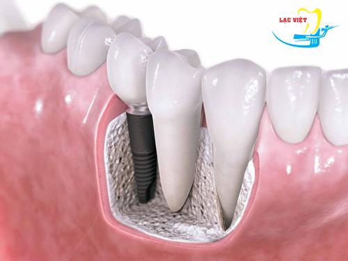 tìm hiểu các bước cấy ghép răng Implant