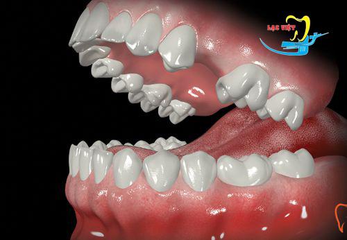 tìm hiểu Trồng răng sứ cố định giá bao nhiêu