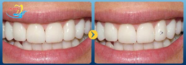 bệnh nhân đính đá vào răng