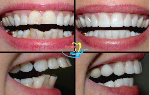 trước sau khi kẹp răng vẩu