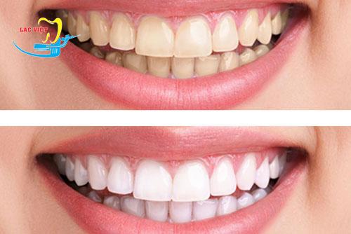trước và sau khi sử dụng bút tẩy trắng răng dazzling white