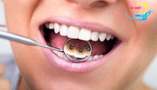 Ưu điểm của phương pháp niềng răng mặt trong