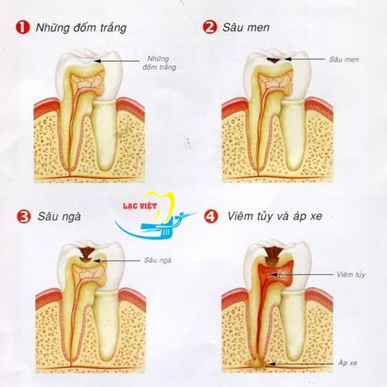 con sâu răng là con gì và cách điều trị dứt điểm