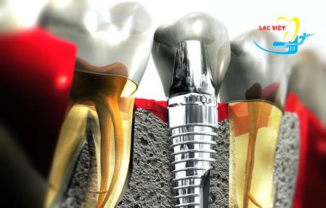 Tìm hiểu Trồng răng Implant ở đâu tốt
