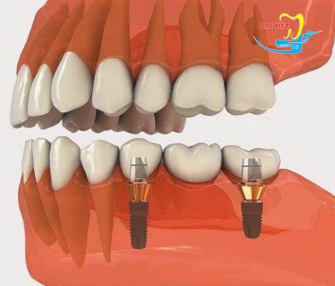 Cùng làm rõ làm răng implant có đau không