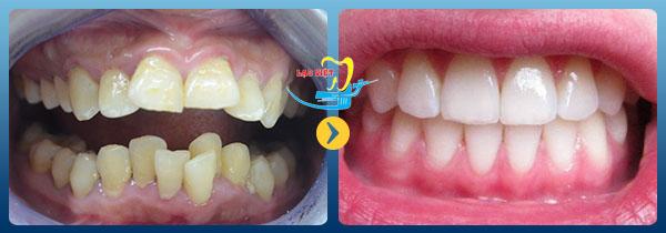 Chỉnh răng khấp khểnh như thế nào hiệu quả