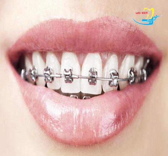 chỉnh răng khểnh giá bao nhiêu là hợp lý