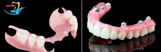 hàm tháo lắp có giá trồng răng rẻ nhất