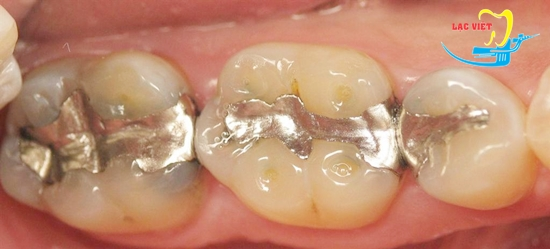 cách trị sâu răng bằng hàn trám răng