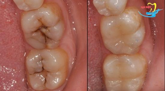 cách trị đau răng sâu bằng hàn trám và kết quả