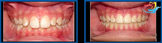 chỉnh răng hô không niềng và kết quả