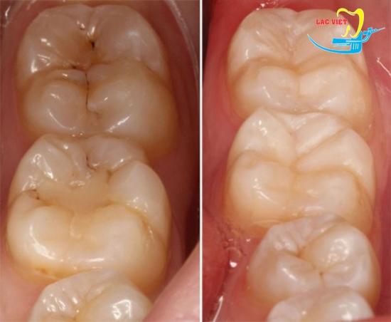 thuốc chữa sâu răng và kết quả trám răng sâu