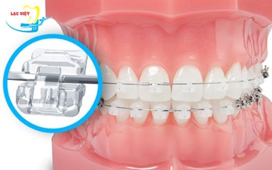 niềng răng mắc cài sứ tự buộc cho hiệu quả nhanh chóng
