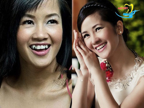 nhổ răng khểnh không đúng chỗ ở nha khoa Lạc Việt
