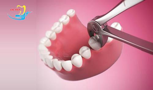 nhổ răng khôn nên hay không