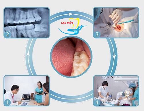 quy trình nhổ răng sâu tại nha khoa Lạc Việt