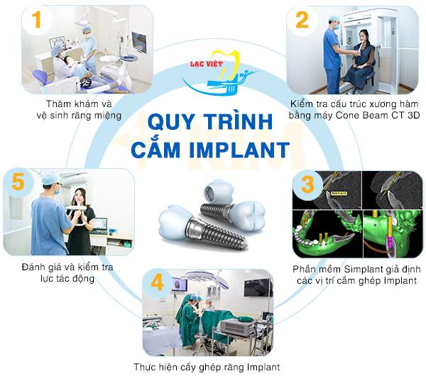 tìm hiểu về Quy Trình Cắm Ghép Răng Implant Đúng Chuẩn