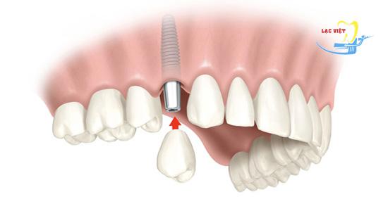 phân tích răng implant giá bao nhiêu 1 răng