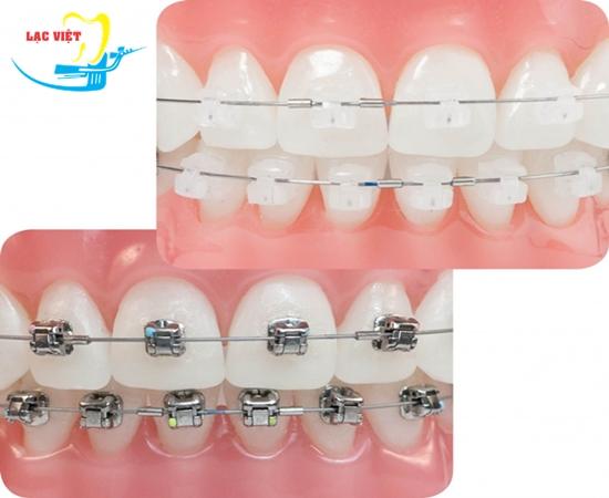 niềng răng bằng mắc cài sứ mang tính thẩm mỹ cao