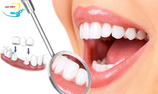 Tìm hiểu về phương pháp trồng răng giá rẻ