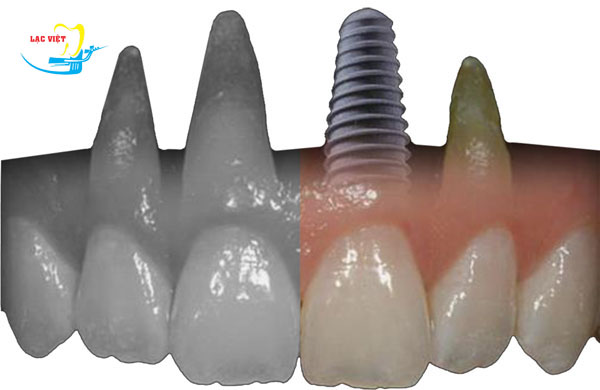 phân tích Công nghệ trồng răng implant