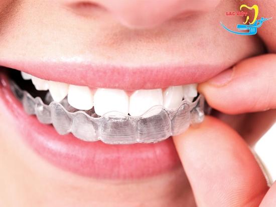 Ưu điểm phương pháp chỉnh răng hô không cần niềng