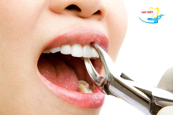 tìm hiểu nên nhổ răng khôn vào lúc nào