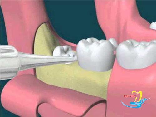 đánh giá nhổ răng khôn có đau không