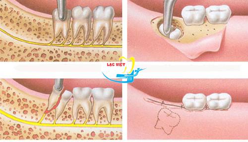 tìm hiểu nhổ răng khôn giá rẻ