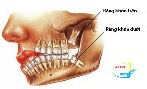 nhổ răng khôn hàm trên bị sâu có nên hay không