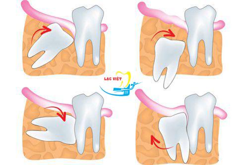 đánh giá nhổ răng khôn mọc lệch có đau không