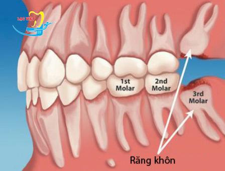 nhổ răng khôn mọc ngang có nguy hiểm không
